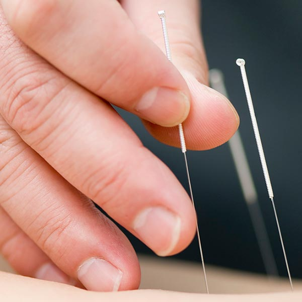 Needling skin, a acupuncture service at Territory Medical Centre, Medical Centre Darwin