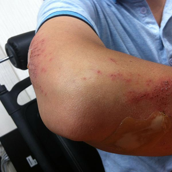 A man with injury in hand, being managed by work place injury management service at Territory Medical Group